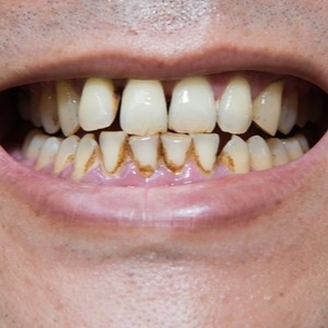 smokers teeth with discolouration and plaque build up