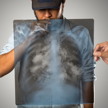 XRAY lungs of a man smoking a cigarette